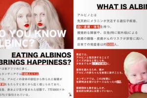7fb8f1c748d490339c64aa37f2515920 300x200 - アルビノを知っていますか?
