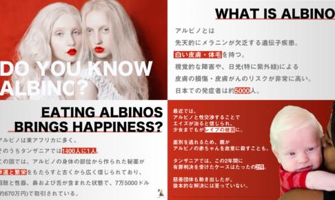 7fb8f1c748d490339c64aa37f2515920 486x290 - アルビノを知っていますか?