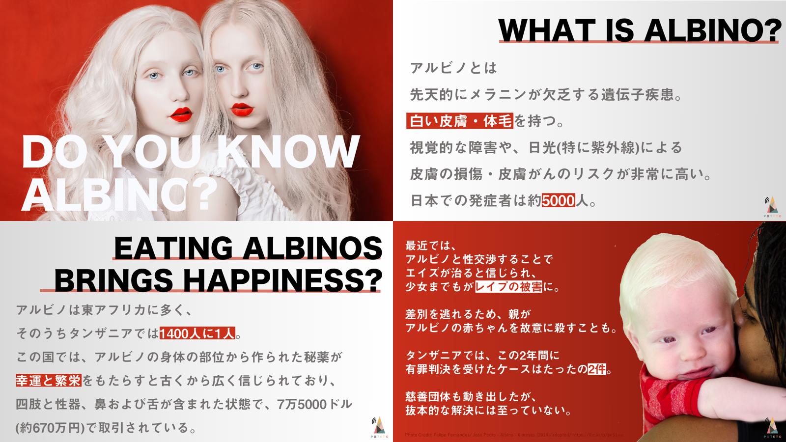 7fb8f1c748d490339c64aa37f2515920 - アルビノを知っていますか?